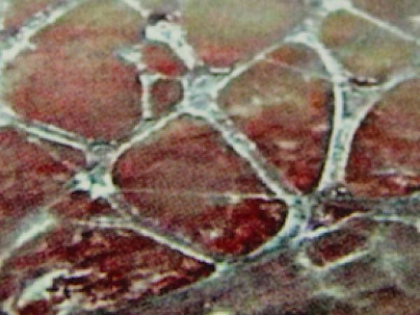 network fasciale